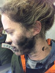Woman burned by battery explosion on flight